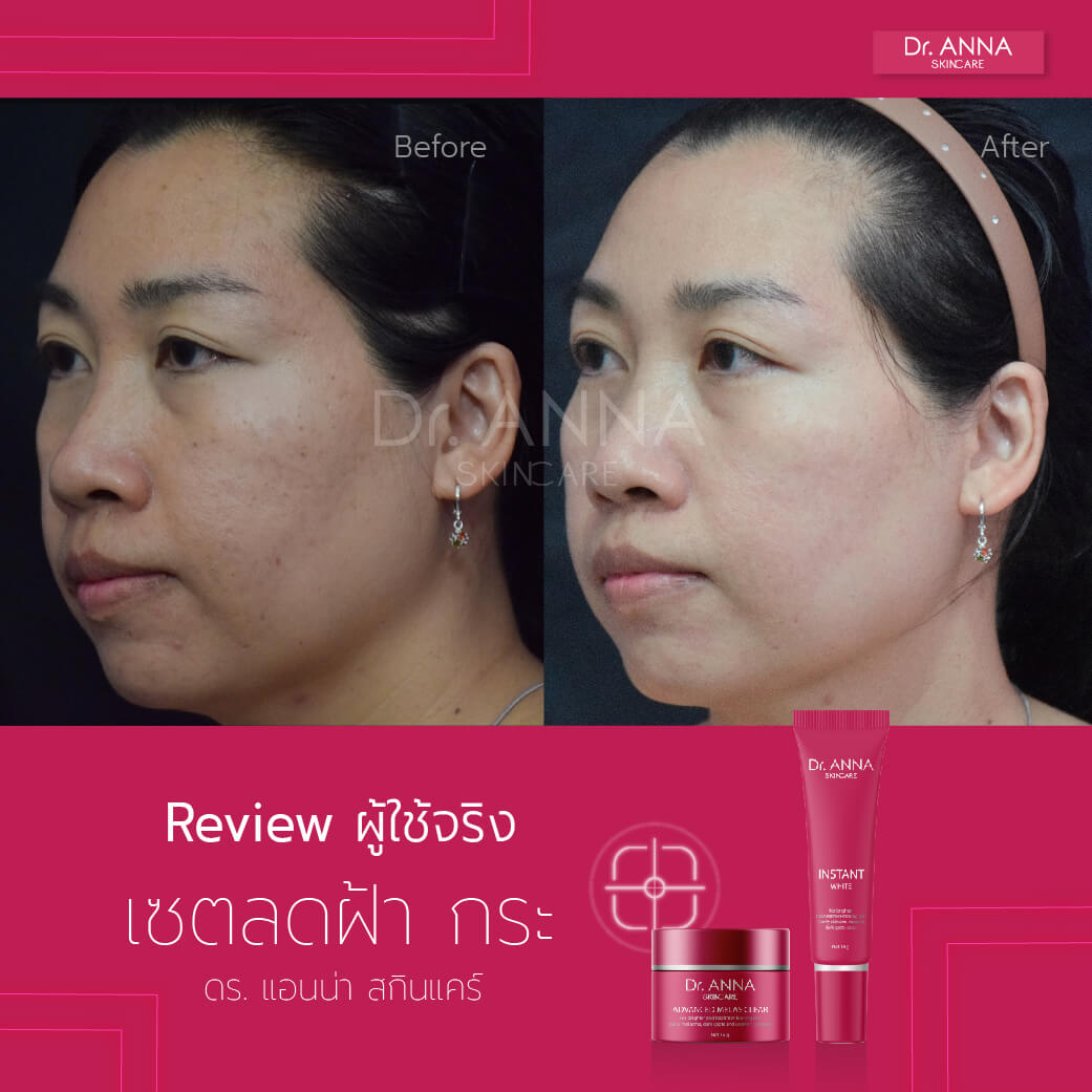 Before_After 2 ลายน้ำ-01