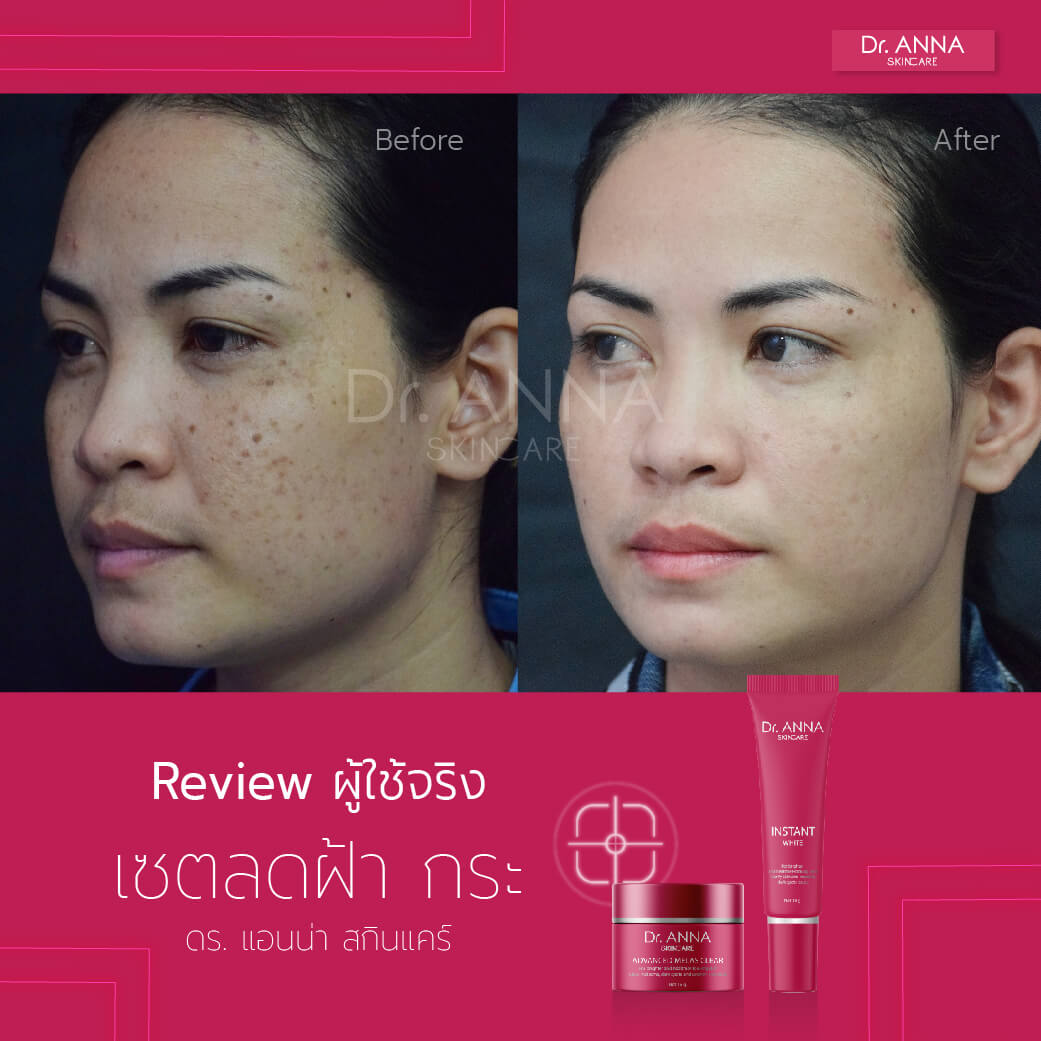 Before_After 2 ลายน้ำ-05