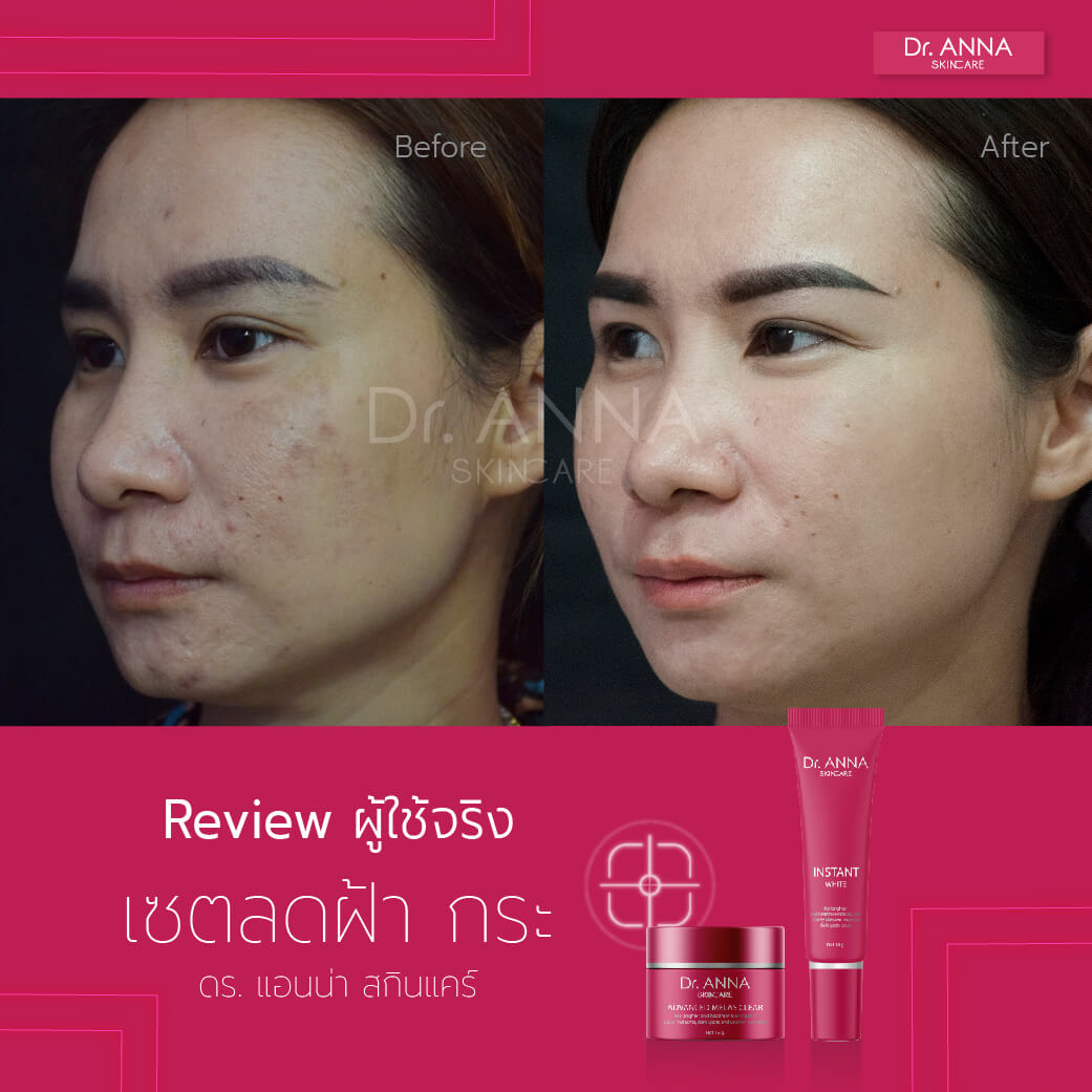 Before_After 2 ลายน้ำ-06