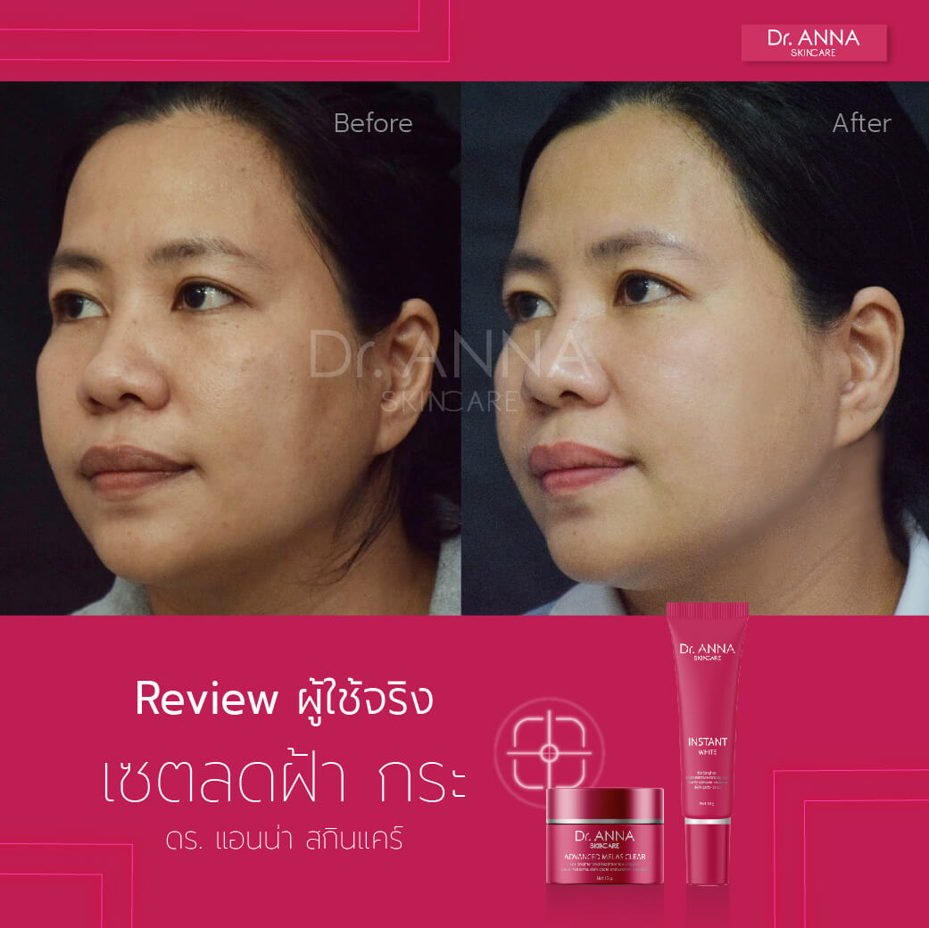 Before_After 2 ลายน้ำ-10